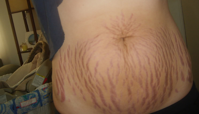 do stretch marks go away or they will stay forever