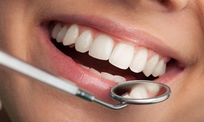 Simple Steps For Keeping Teeth Healthy